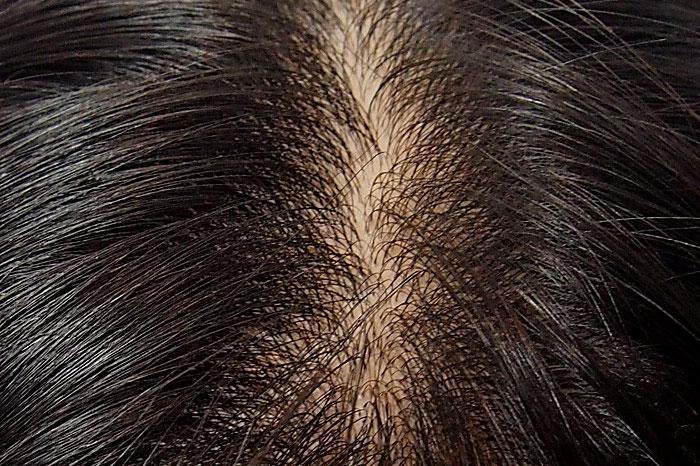 ホホバオイルが頭皮環境を良くしてくれる理由