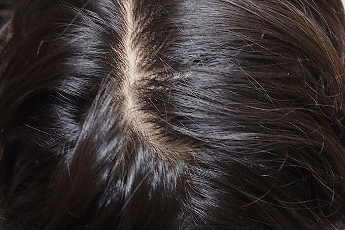 乾燥した頭皮にホホバオイルを使う方法