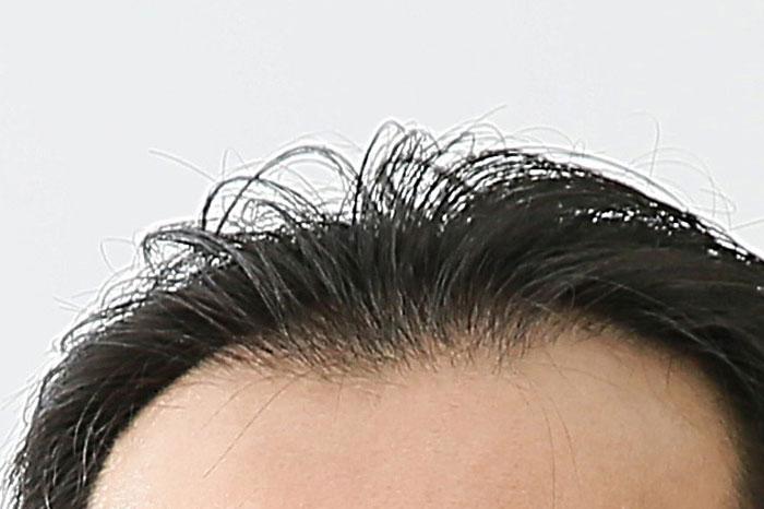 脂ぎってる頭皮にホホバオイルが効果的な理由