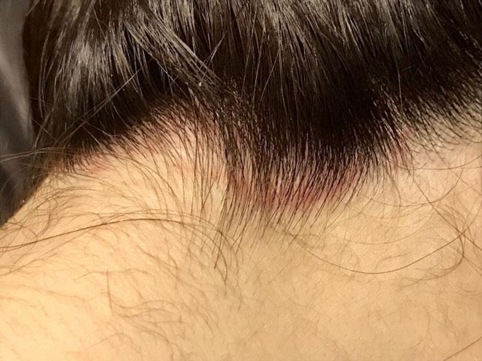 ホホバオイルで脂漏性皮膚炎の対策はその人に適した使い方があるので注意